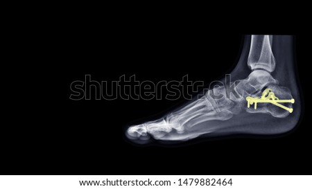 Film ankle X-ray radiograph show heel bone fracture(Calcaneus fracture) which treated by surgery and plate fixation(ORIF) with plate and screws. Highlight on medical implant and instrument. #1479882464