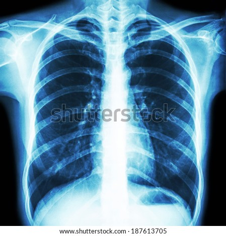 Film chest x-ray PA upright : show normal human\'s chest
