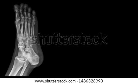Film foot X ray radiograph show toe bone broken ( base of metatarsal fracture or Jones fracture ) from traumatic injury. The patient has foot pain and swelling. Medical imaging concept  #1486328990