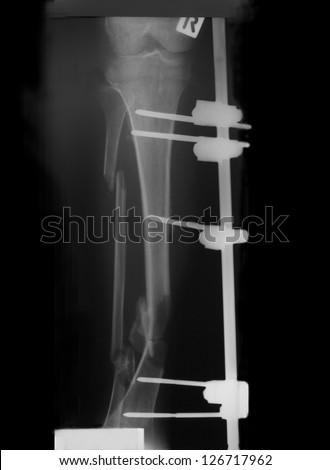 Film right leg of a man, antero-posterior view: demonstrated multiple compound fracture of tibia and fibular with nails and plate fixation.