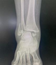 Film x-ray ankle series of patient who have right distal fibula fracture, Medical Technology and Science concept.