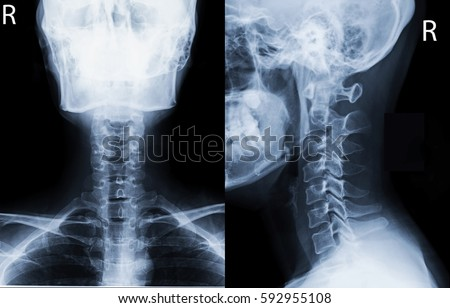 Free photos Film x-ray skull and cervical spine lateral view ...