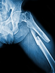 Film X-ray  femur show complete fracture shaft of femur and displace
