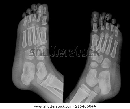 Film X Ray Normal Childs Ankle Images And Stock Photos Avopixcom