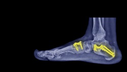 Film X-ray foot radiograph show Flat foot deformity (pes planus or fallen arches). Treatment by bone correction surgery (Evan Cotton osteotomy and fusion operation). Medical implant technology concept