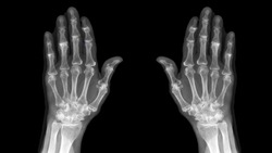 Film X ray hand radiography show degenerative osteoarthritis disease(OA disorder). Patient has finger joint arthritis,pain and stiffness problem. Medical diagnosis technology and examination concept.