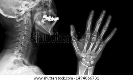 Film X ray radiograph show anatomy of human bone skull, cervical spine, skeletal and hand skeleton.  medical imaging and radiology concept  #1494066731