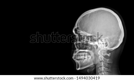 Film X-ray radiograph show human anatomy of bone skull, cervical spine and skeleton with free black space background.  Medical imaging in neurology and radiology concept  #1494030419