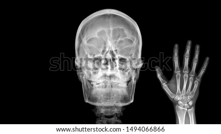 Film X ray radiograph show human anatomy of skull bone and skeleton which skeletal hand show sign of saying Hello. Medical imaging in orthopedic and radiology concept #1494066866