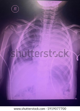 Film x-ray show boot shape heart of patient who being TOF tetralogy of fallot the congenital heart disease with left pleural effusion , atelectasis for medical concept   Photo stock ©