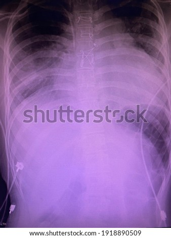 Film x-ray show boot shape heart the cyanotic heart type of congenital heart disease with pleural effusions both lung ,pulmonary congestion ,medical concepts  Photo stock ©
