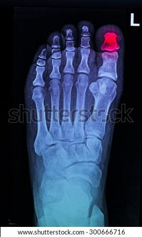 film x-ray show broken foot