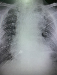 Film x-ray show diffuse reticular infiltration with pulmonary fibrosis with widening mediastinum likely enlarged great vessels