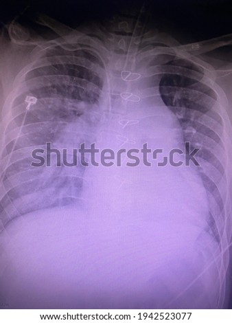 Film x-ray show pleural effusion with pulmonary congestion for medical and technology concepts  Photo stock ©