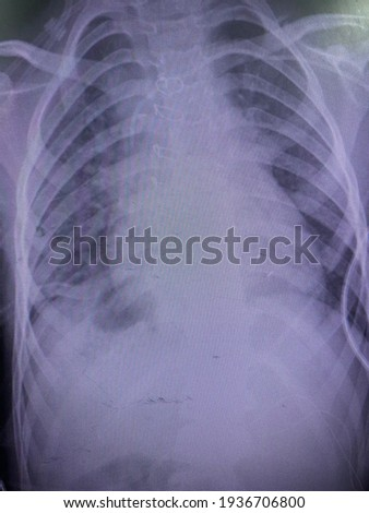 Film x-ray show right pleural effusion with pulmonary congestion  Photo stock ©