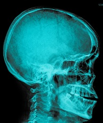 Film x-ray Skull lateral : show normal human's skull and cervical spine and blank area at right side
