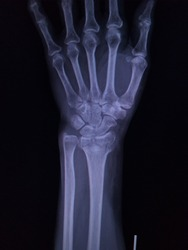 Film x-ray wrist (AP views)a female 56 year old accident  showing fracture  distal radius or fracture wrist , medical image concept.