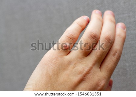 Finger wart on hand. Health concept. body wart Zdjęcia stock ©