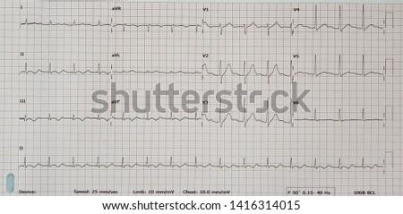 First degree AV block. Sinus rhythm. #1416314015