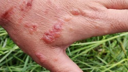 First degree burn of skin. Burns of hand, wounds. Influence poison of Heracleum (Giant Hogweed, Cow parsnip) on skin. One week after defeat poison