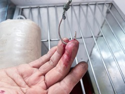 Fish hook emergency  wound of  hand  Skin ,medical treatment concept remove foreign body , selective focus.
