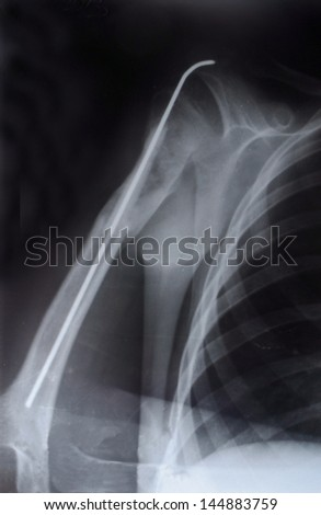 fixing the needle in the top of the humerus, X-ray