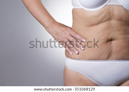 Mature women with flabby belly