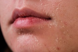flaky skin of a girl after cosmetic procedures
