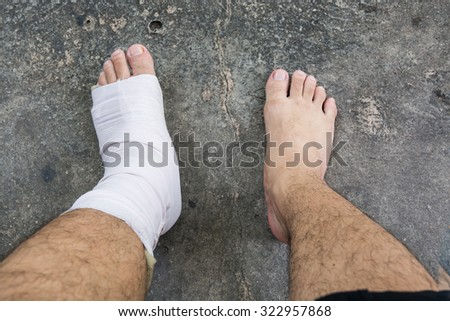 Foot and Ankle injury with bandage