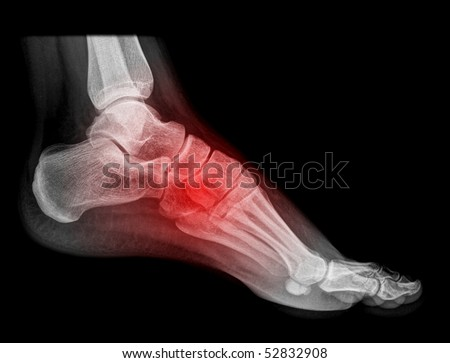 foot and ankle pain on x-ray, isolated on black background