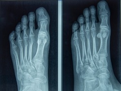Foot and Toes. Human leg in the X-ray image