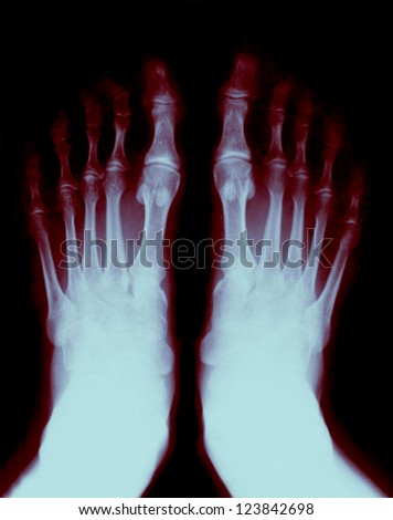 Foot fingers exposed on the x-ray