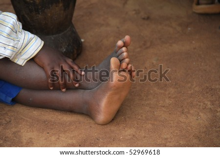 foot of an African child