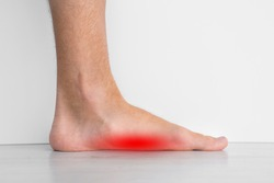 Foot pain because of strong flat feet also called pes planus or fallen arches. The arches on the inside of feet are flattened