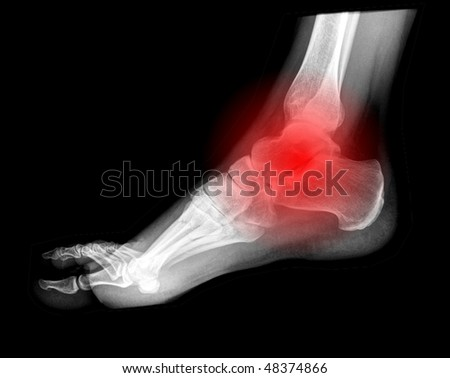 foot pain, x-ray side view