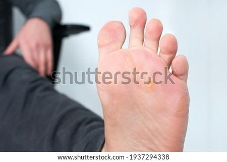 Foot with corns, calluses and dry skin, wart plantar verrucas. Verrucas papilloma callus virus, desease on foot skin. Unhealthy foot leg with corn close up. Man shows callosity before treatment. Zdjęcia stock ©