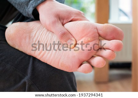 Foot with corns, calluses and dry skin, wart plantar verrucas. Verrucas papilloma callus virus, desease on foot skin. Unhealthy foot leg with corn close up. Man shows callosity before treatment.