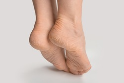 foot with dry skin on heel and sole. women female feet with rough cracked skin. Cracked heel on woman's foot. Dry heels and soles woman on white background closeup