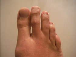 Foot with second toe longer than big toe, which is known as Morton's toe.