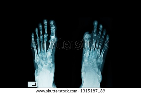 foot x-ray, x-ray image of diabetes patient with cutted big toe, infected wound of diabetes patient with post amputated a big toe right side  #1315187189