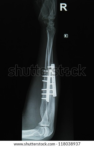 forearm  x-ray image showing plate-screw internal fixation
