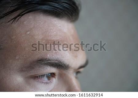 forehead sweat. Face of very sweating man. hot summertime season.  Сток-фото ©