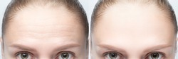 Forehead wrinkles before and after injection, treatment, surgery. Womans face close up.