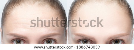 Forehead wrinkles before and after injection, treatment, surgery. Womans face close up. Stock photo ©