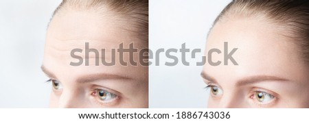 Forehead wrinkles before and after mefotherapy injection, treatment, surgery. Womans face close up. Stock photo ©