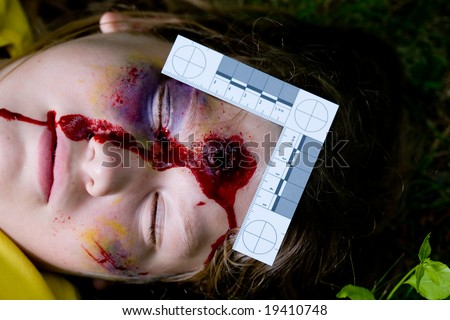 AK 47 Bullet Wound http://www.shutterstock.com/pic-19410748/stock-photo-forensically-accurate-photo-of-a-teen-with-a-bullet-wound.html