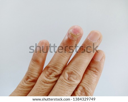 Four fingers on the left hand finger on the fingernail. The finger ring has a thin cream coated to maintain. #1384329749