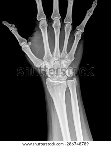 Fracture distal radius (wrist bone)  #286748789