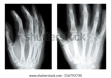 fracture of the middle finger (boxer fracture), X-ray two views