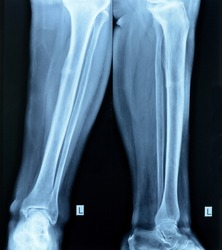 fracture tibia. small tibial fracture.